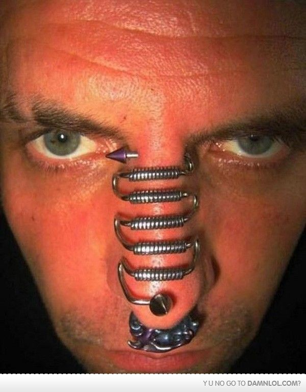 Rùng rợn người đàn ông tiến hành phẫu thuật cắt bỏ tai trong vì muốn thay đổi cơ thể theo ý muốn - Ảnh 5.