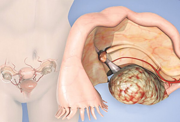Những biểu hiện tưởng không liên quan đến cơ quan sinh sản nhưng hóa ra lại cảnh báo ung thư phụ khoa - Ảnh 5.