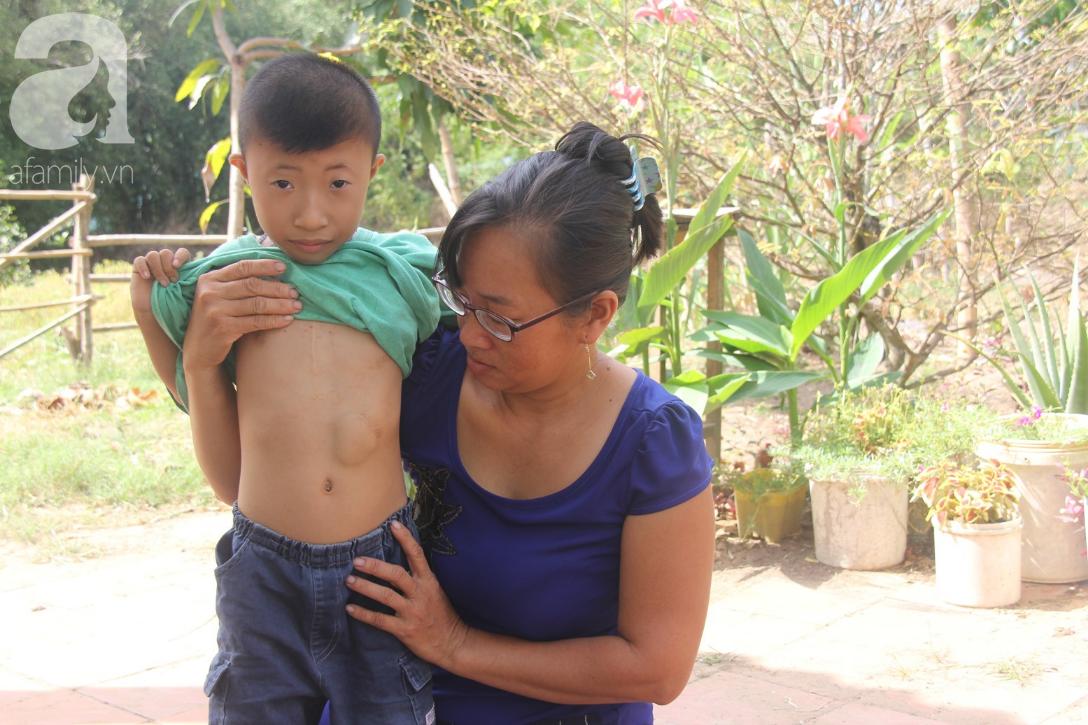 Phép màu đến với người anh tâm thần, cầu xin mọi người cứu lấy em trai 9 tuổi bị tim bẩm sinh - Ảnh 6.