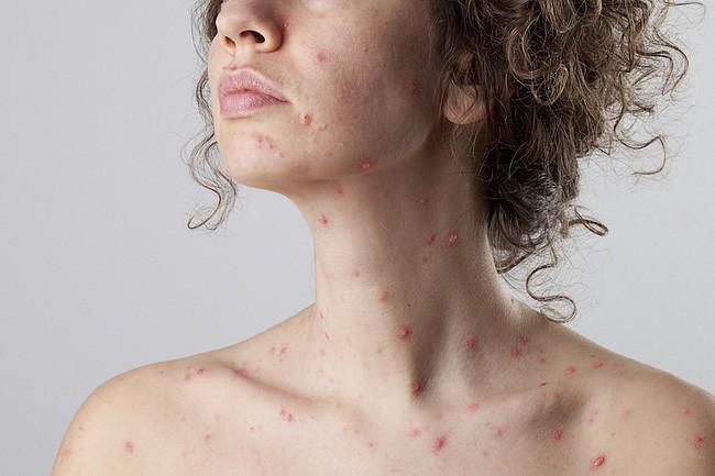 Virus gây bệnh sởi xâm nhập vào cơ thể như thế nào và những biến chứng nguy hiểm nó gây ra - Ảnh 3.