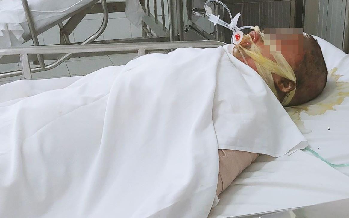 Vụ người phụ nữ nghi dùng xăng đốt chồng rồi tự thiêu: Người chồng liên tục gọi vợ trong phòng chăm sóc đặc biệt