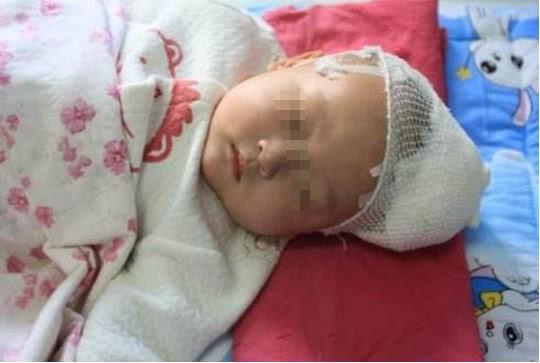 Bé 4 tháng tuổi bị tổn thương não nghiêm trọng, nguyên nhân đến từ hành động cực kỳ phổ biến của hầu hết bố mẹ khi nuôi con nhỏ - Ảnh 1.