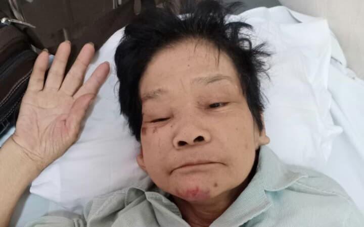 Hà Nội: Tìm người thân cho một phụ nữ lớn tuổi, mất trí nhớ tại bệnh viện E