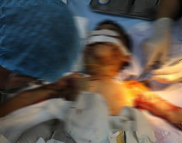 Bé trai bị chó cắn gần 200 vết khâu, tử vong do không thể cứu chữa - Ảnh 1.