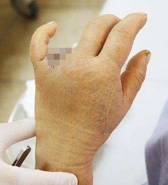 Người phụ nữ bị mất luôn ngón tay vì vướng nhẫn vào cửa xe ô tô - Ảnh 1.