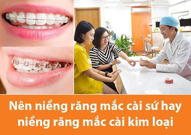 Nên niềng răng mắc cài sứ hay niềng răng mắc cài kim loại - Ảnh 1.