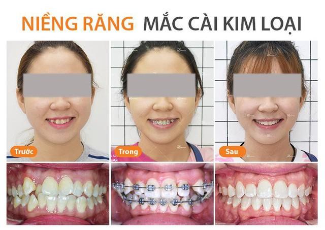 Nên niềng răng mắc cài sứ hay niềng răng mắc cài kim loại - Ảnh 2.