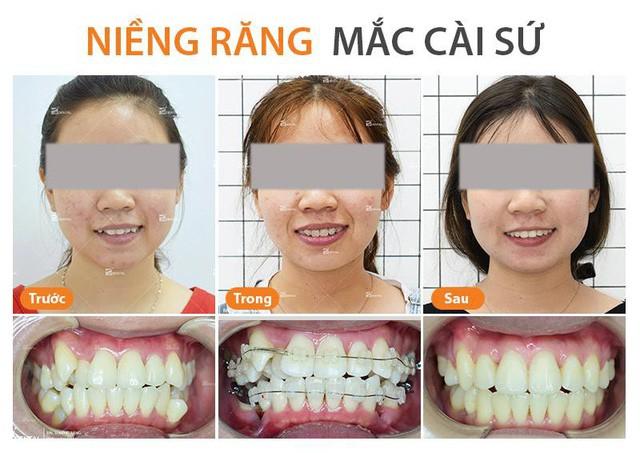 Nên niềng răng mắc cài sứ hay niềng răng mắc cài kim loại - Ảnh 3.