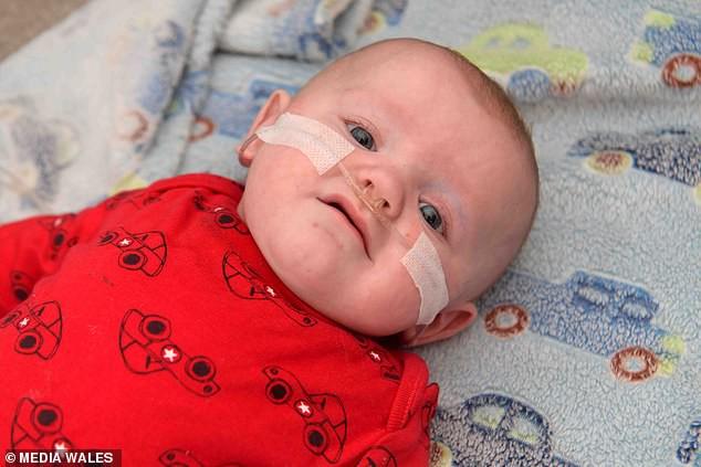 Bé trai sinh non 4 tháng, nặng chưa đến 1 kg với kích thước cơ thể nhỏ đến mức không thể tưởng tượng được - Ảnh 1.