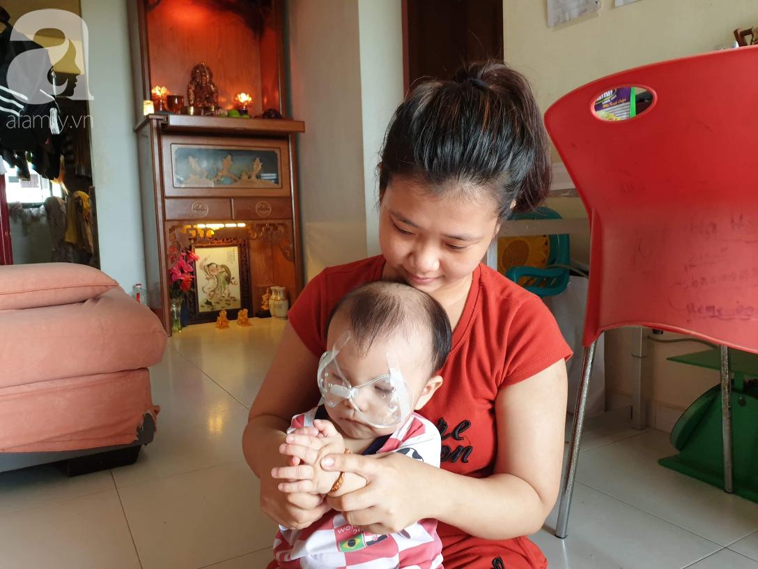 Hi vọng đến với bé trai 15 tháng tuổi bị mù bẩm sinh, mẹ trẻ cúi đầu, ôm con đi tìm ánh sáng - Ảnh 4.