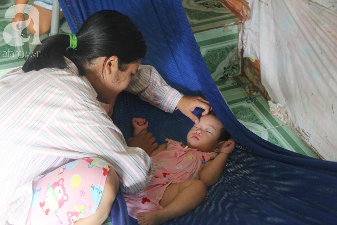 Bé gái 1 tuổi co giật liên tục đến mức méo miệng, người mẹ trẻ khóc cạn nước mắt cầu xin một cơ hội sống cho con - Ảnh 7.