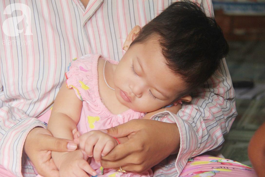 Bé gái 1 tuổi co giật liên tục đến mức méo miệng, người mẹ trẻ khóc cạn nước mắt cầu xin một cơ hội sống cho con - Ảnh 2.