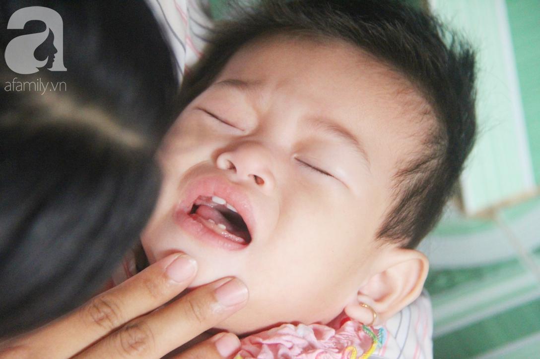 Bé gái 1 tuổi co giật liên tục đến mức méo miệng, người mẹ trẻ khóc cạn nước mắt cầu xin một cơ hội sống cho con - Ảnh 4.