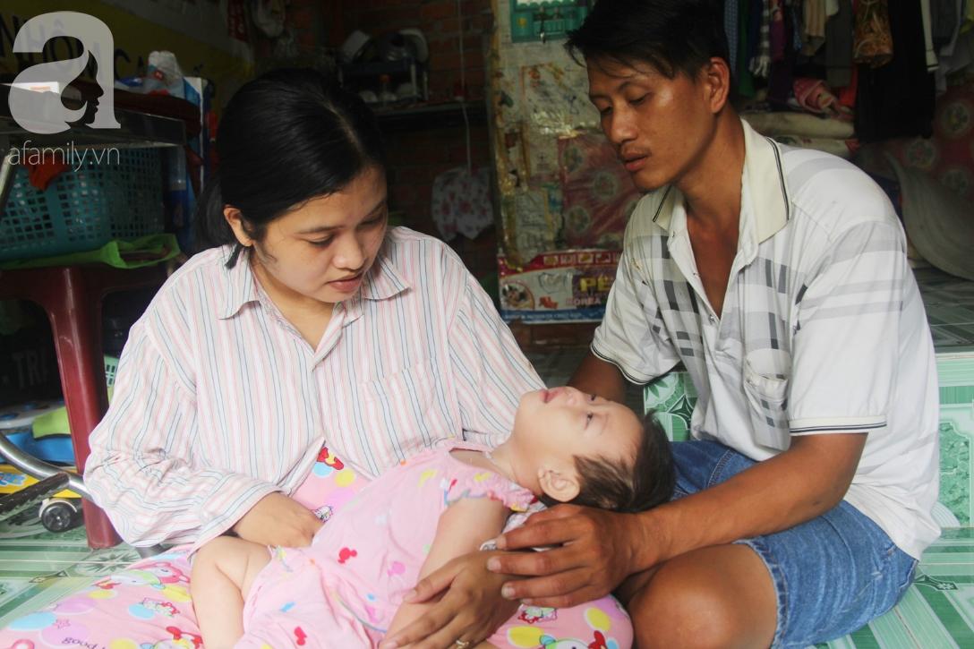 Bé gái 1 tuổi co giật liên tục đến mức méo miệng, người mẹ trẻ khóc cạn nước mắt cầu xin một cơ hội sống cho con - Ảnh 1.