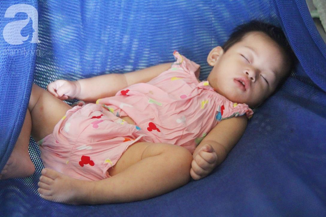 Bé gái 1 tuổi co giật liên tục đến mức méo miệng, người mẹ trẻ khóc cạn nước mắt cầu xin một cơ hội sống cho con - Ảnh 8.