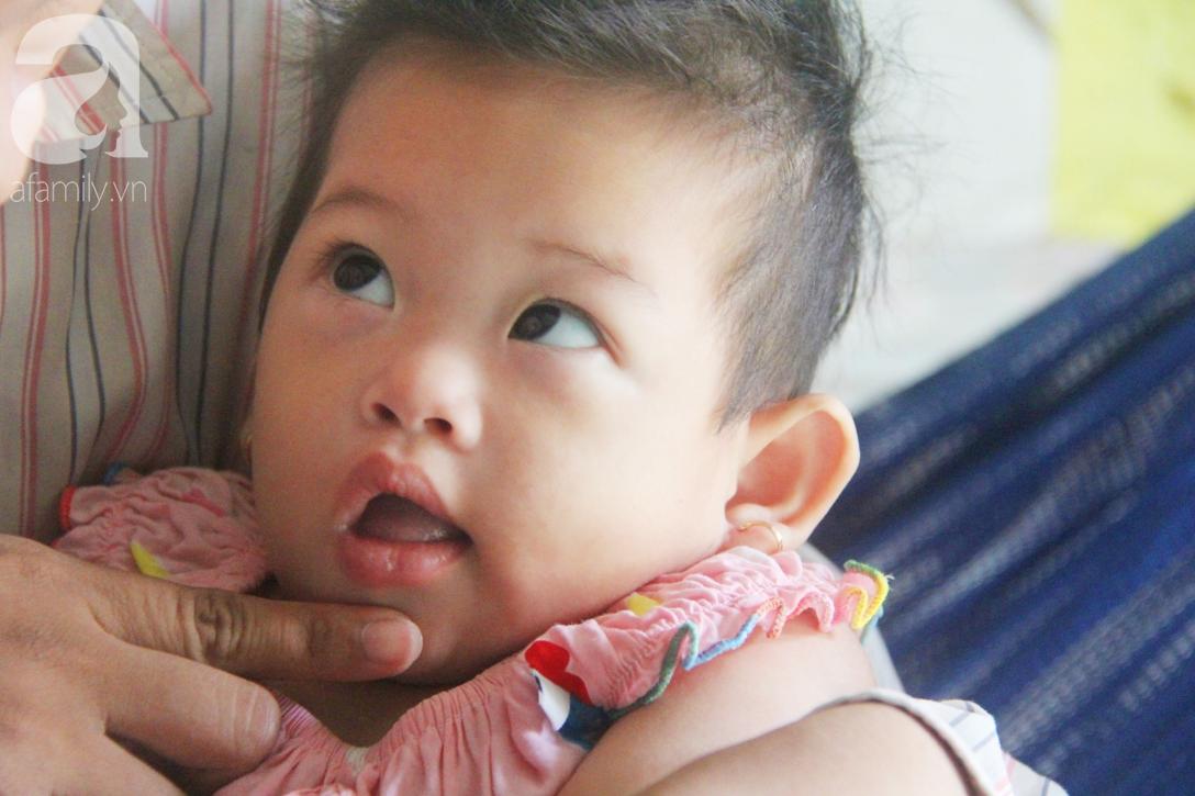 Bé gái 1 tuổi co giật liên tục đến mức méo miệng, người mẹ trẻ khóc cạn nước mắt cầu xin một cơ hội sống cho con - Ảnh 19.