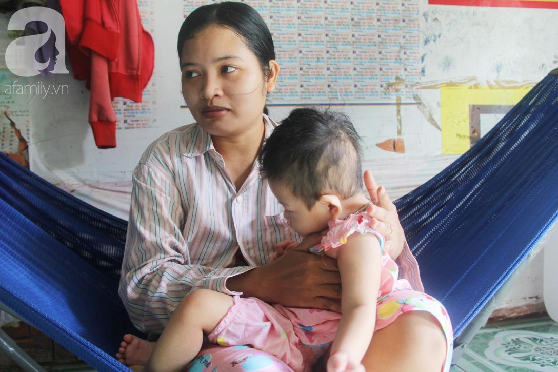 Bé gái 1 tuổi co giật liên tục đến mức méo miệng, người mẹ trẻ khóc cạn nước mắt cầu xin một cơ hội sống cho con - Ảnh 9.