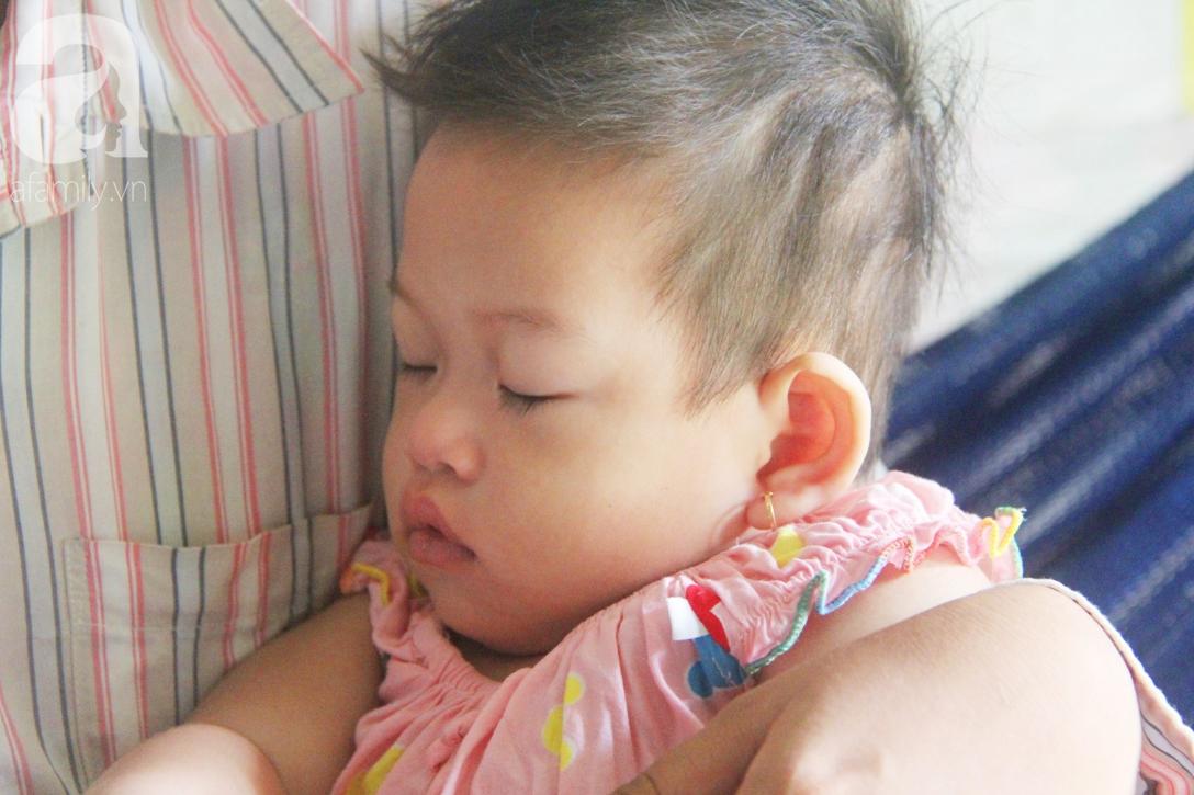 Bé gái 1 tuổi co giật liên tục đến mức méo miệng, người mẹ trẻ khóc cạn nước mắt cầu xin một cơ hội sống cho con - Ảnh 17.