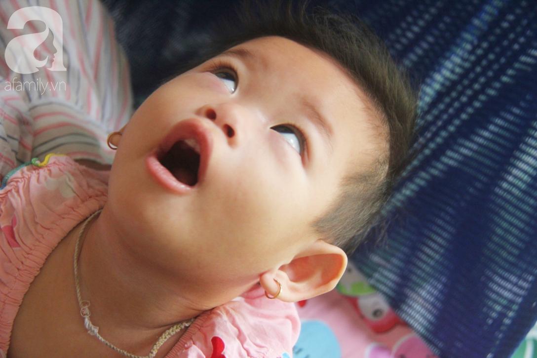 Bé gái 1 tuổi co giật liên tục đến mức méo miệng, người mẹ trẻ khóc cạn nước mắt cầu xin một cơ hội sống cho con - Ảnh 10.