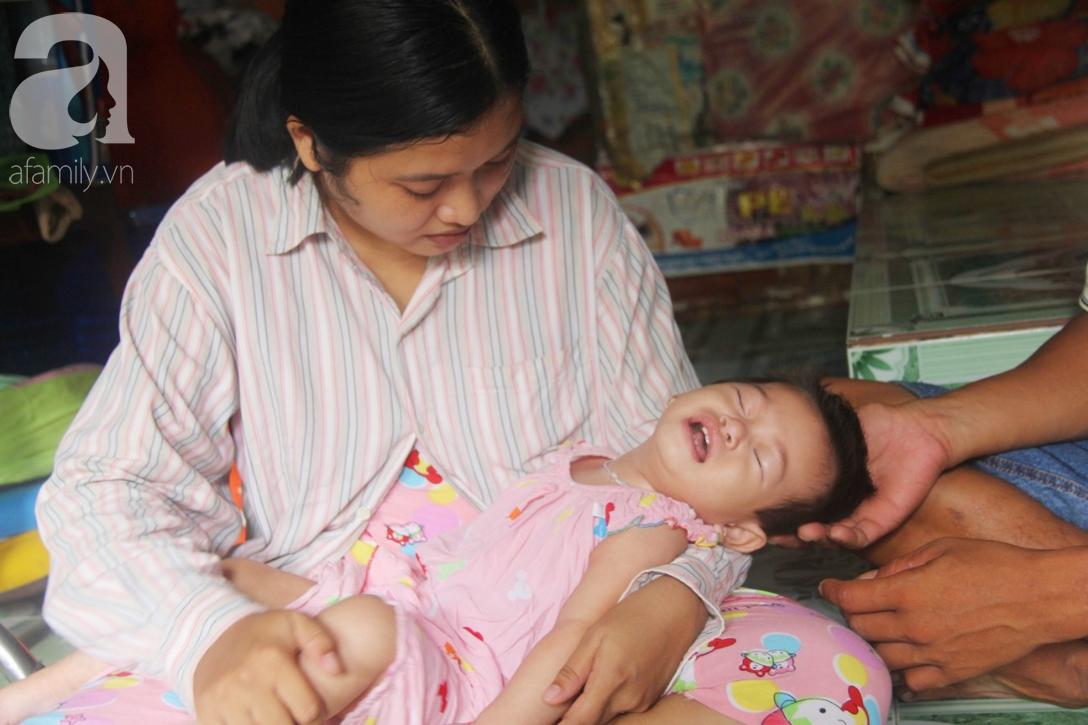 Bé gái 1 tuổi co giật liên tục đến mức méo miệng, bố mẹ nghèo bật khóc khi đã có tiền chữa bệnh cho con - Ảnh 3.