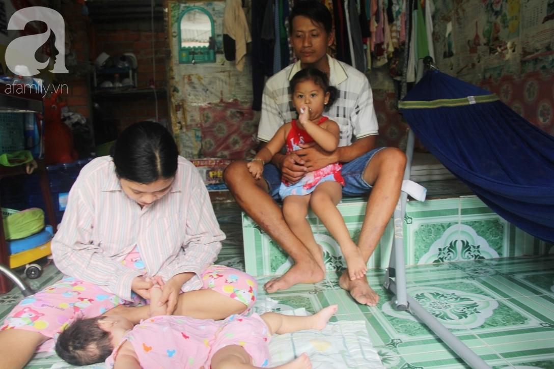Bé gái 1 tuổi co giật liên tục đến mức méo miệng, bố mẹ nghèo bật khóc khi đã có tiền chữa bệnh cho con - Ảnh 5.