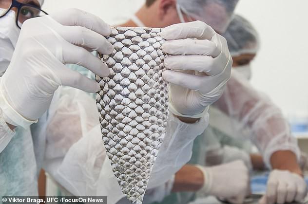 Kỳ tích chưa từng thấy: Người chuyển giới đầu tiên trên thế giới được phẫu thuật tái tạo âm đạo bằng da cá rô phi - Ảnh 2.