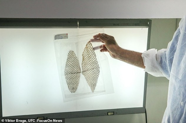Kỳ tích chưa từng thấy: Người chuyển giới đầu tiên trên thế giới được phẫu thuật tái tạo âm đạo bằng da cá rô phi - Ảnh 5.