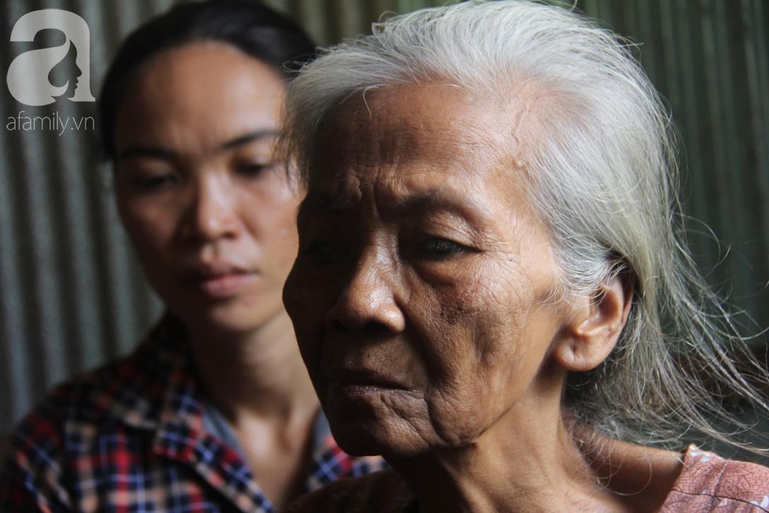 Lời khẩn cầu của người bà 70 tuổi mù một bên mắt, chân bị hoại tử, thối rữa nặng mà không có tiền phẫu thuật - Ảnh 18.