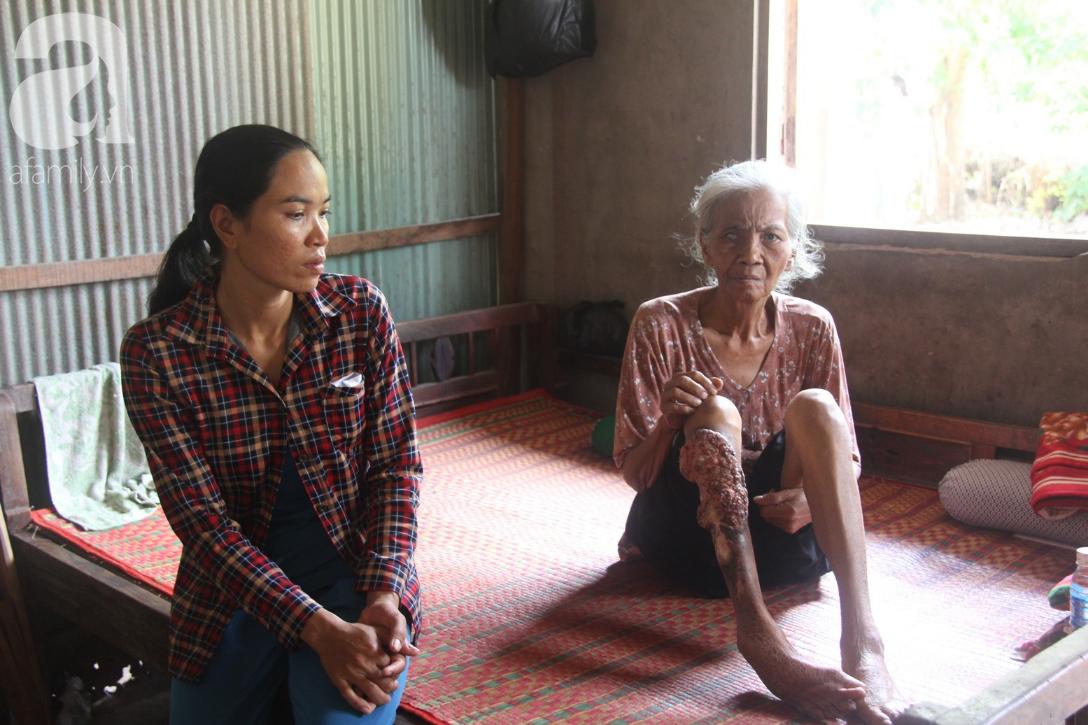 Lời khẩn cầu của người bà 70 tuổi mù một bên mắt, chân bị hoại tử, thối rữa nặng mà không có tiền phẫu thuật - Ảnh 16.
