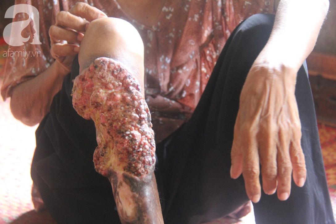Lời khẩn cầu của người bà 70 tuổi mù một bên mắt, chân bị hoại tử, thối rữa nặng mà không có tiền phẫu thuật - Ảnh 4.