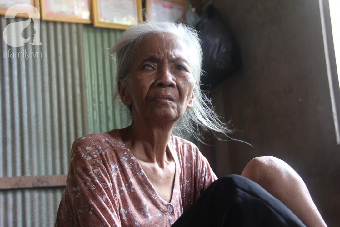Lời khẩn cầu của người bà 70 tuổi mù một bên mắt, chân bị hoại tử, thối rữa nặng mà không có tiền phẫu thuật - Ảnh 11.