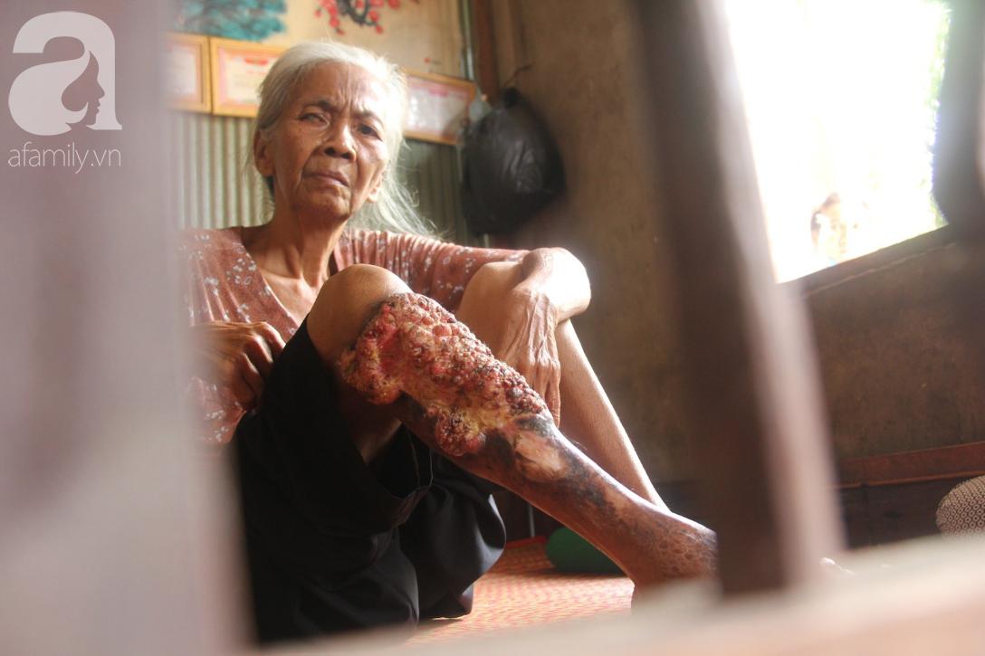Lời khẩn cầu của người bà 70 tuổi mù một bên mắt, chân bị hoại tử, thối rữa nặng mà không có tiền phẫu thuật - Ảnh 2.