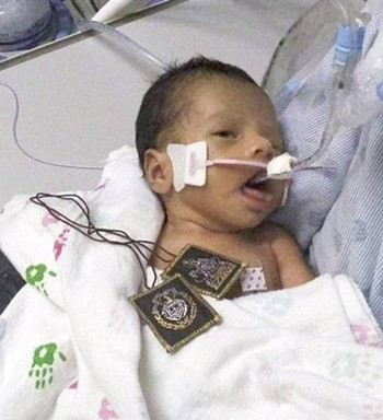 Vụ sát hại mẹ bầu cướp thai nhi: Em bé đã mở mắt, gia đình không rút ống thở mà vẫn chờ đợi một phép màu - Ảnh 2.