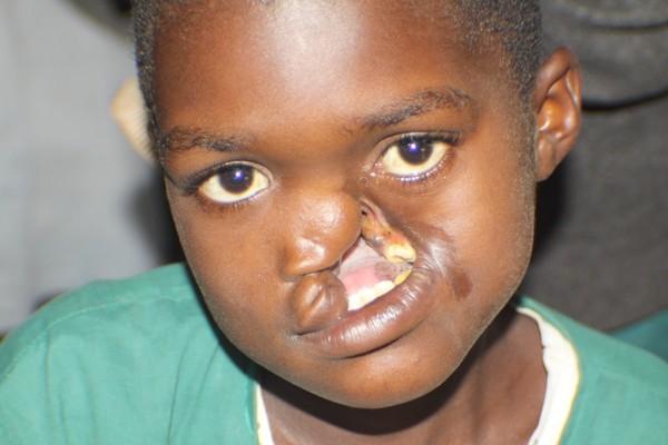 Noma - Căn bệnh kinh hoàng nhất thế giới, chỉ có 15% trẻ em sống sót sau cơn đau cấp tính - Ảnh 5.