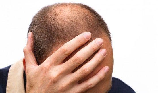 Chuyên gia chỉ mặt những nguyên nhân khiến tóc rụng nhiều không ngờ - Ảnh 3.