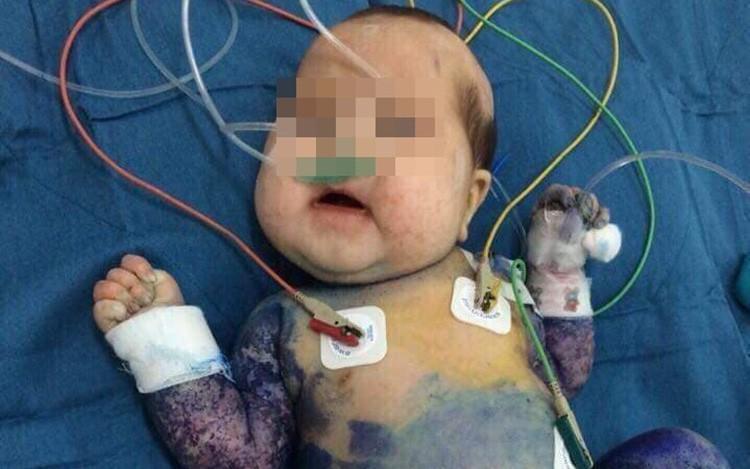 Vừa ly thân thì phát hiện có thai, mẹ nghẹn ngào khi con trai mới sinh nguy kịch nhưng bên chồng bỏ mặc