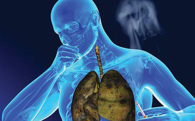 Giám đốc BV Ung bướu: Ung thư phổi khó phát hiện, nhưng có dấu hiệu này thì đến viện ngay - Ảnh 2.