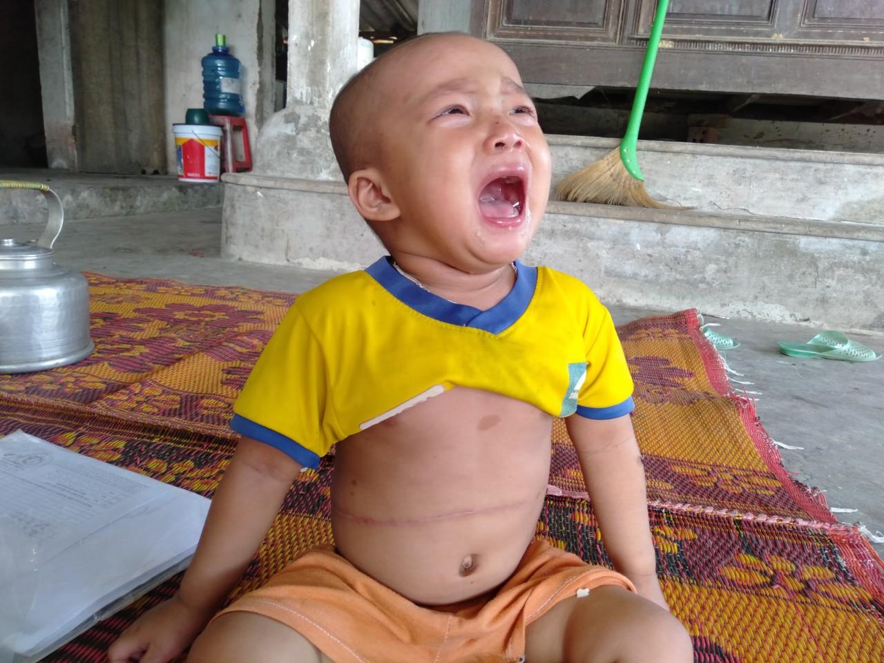 Không cam chịu con gái 3 tuổi chết mòn vì bệnh tật, vợ chồng nghèo sang Lào nhặt phế liệu kiếm tiền chữa bệnh cho con - Ảnh 1.