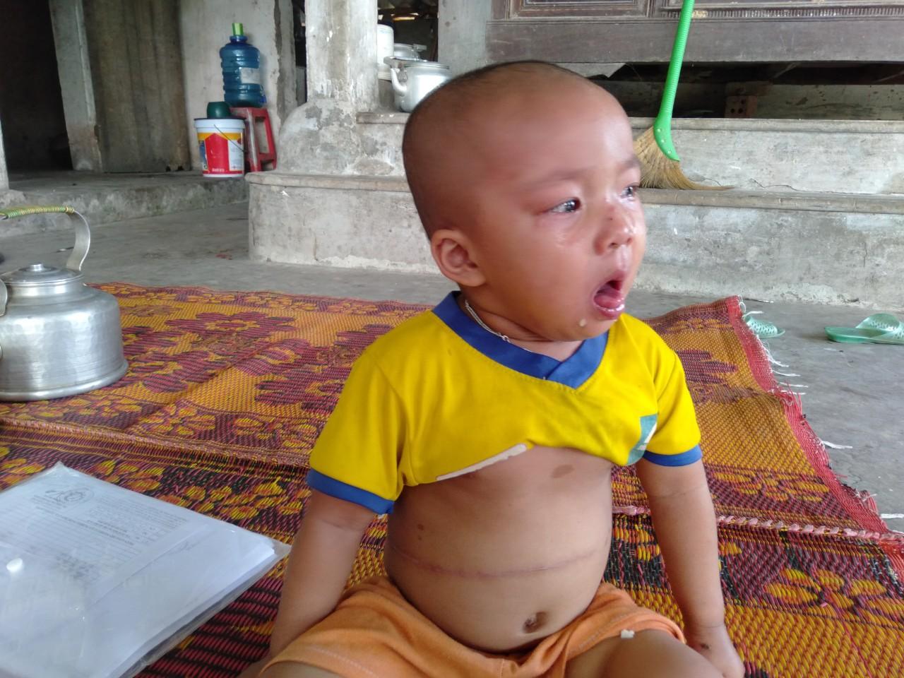 Không cam chịu con gái 3 tuổi chết mòn vì bệnh tật, vợ chồng nghèo sang Lào nhặt phế liệu kiếm tiền chữa bệnh cho con - Ảnh 10.