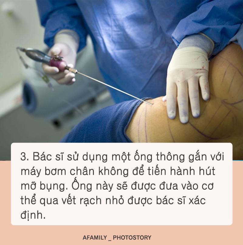 Hút mỡ bụng được chuyên gia thực hiện theo các bước như thế này, bước thứ 2 cực kì quan trọng - Ảnh 3.