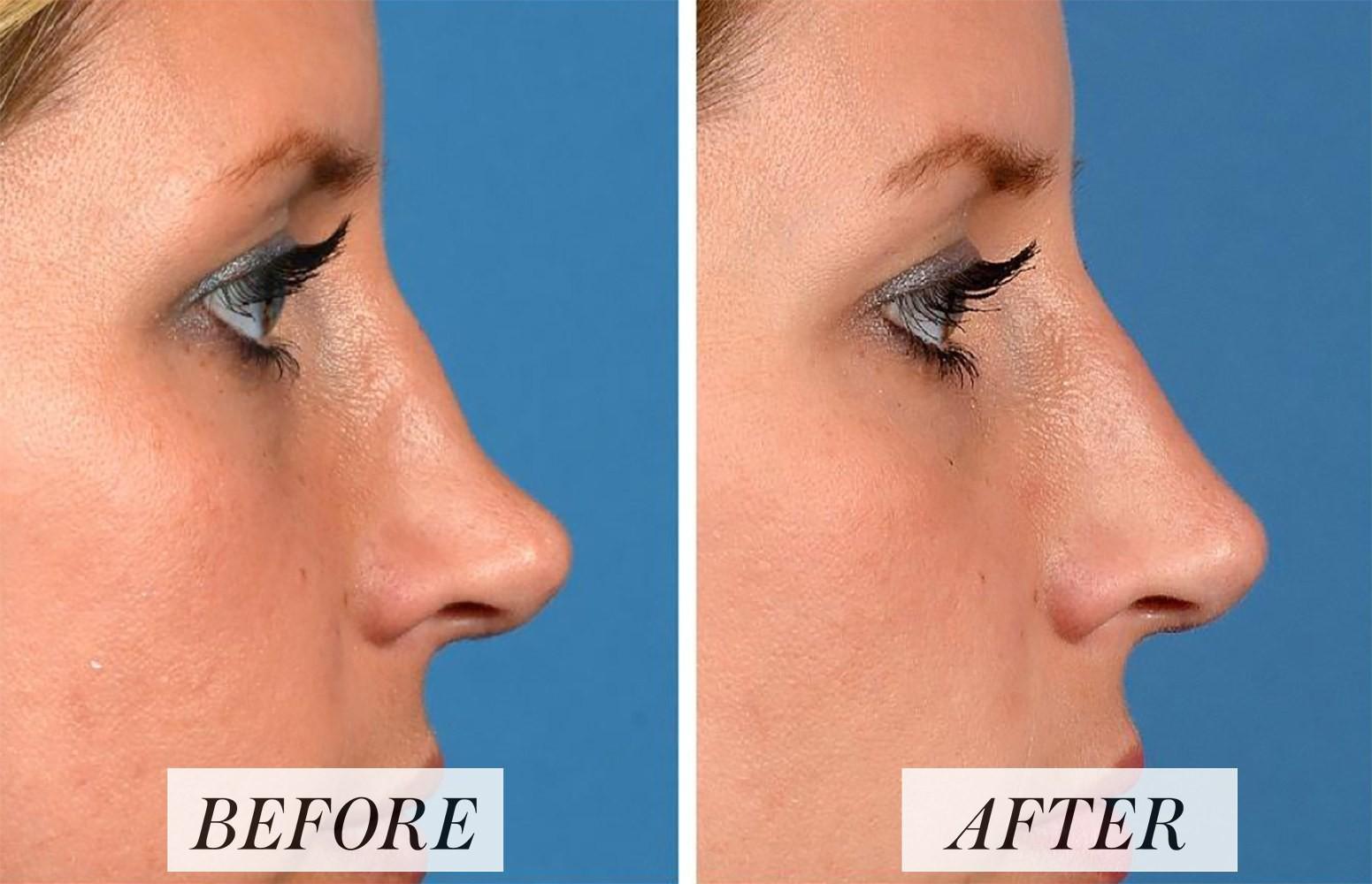 Nâng mũi không phẫu thuật: Không cần động dao kéo, không đau đớn nhưng đã khiến 1 người phụ nữ bị mù mắt - Ảnh 2.