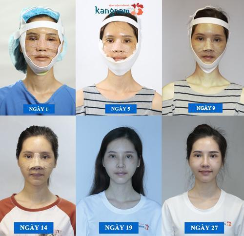 Ngọc nữ Nam Định và màn thay đổi diện mạo đỉnh nhất của năm: Búp bê sống được ví là Yoshi Việt Nam - Ảnh 4.