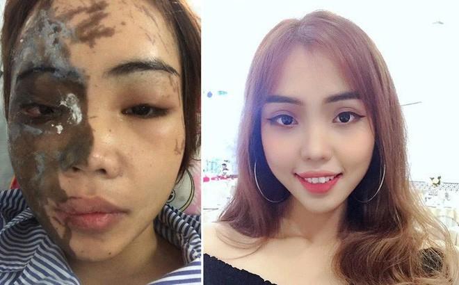 Ca mổ tái tạo khuôn mặt cho cô gái Đà Nẵng bị chồng sắp cưới tạt axit qua lời kể của bác sĩ - Ảnh 3.