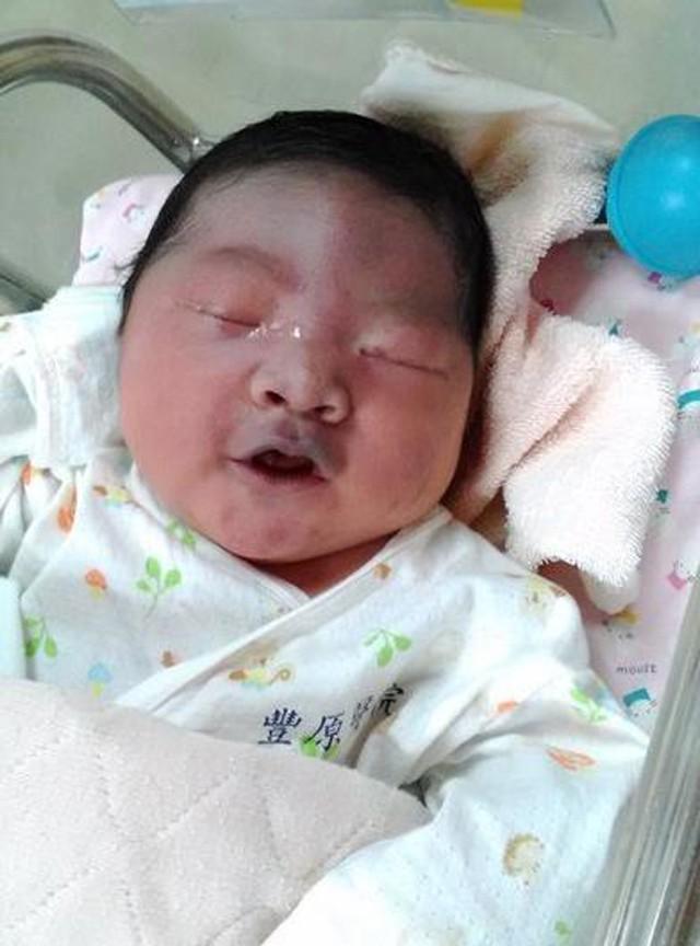 Mẹ bầu ăn uống thiếu khoa học khiến đứa trẻ sinh ra mặt mày bầm tím - Ảnh 1.