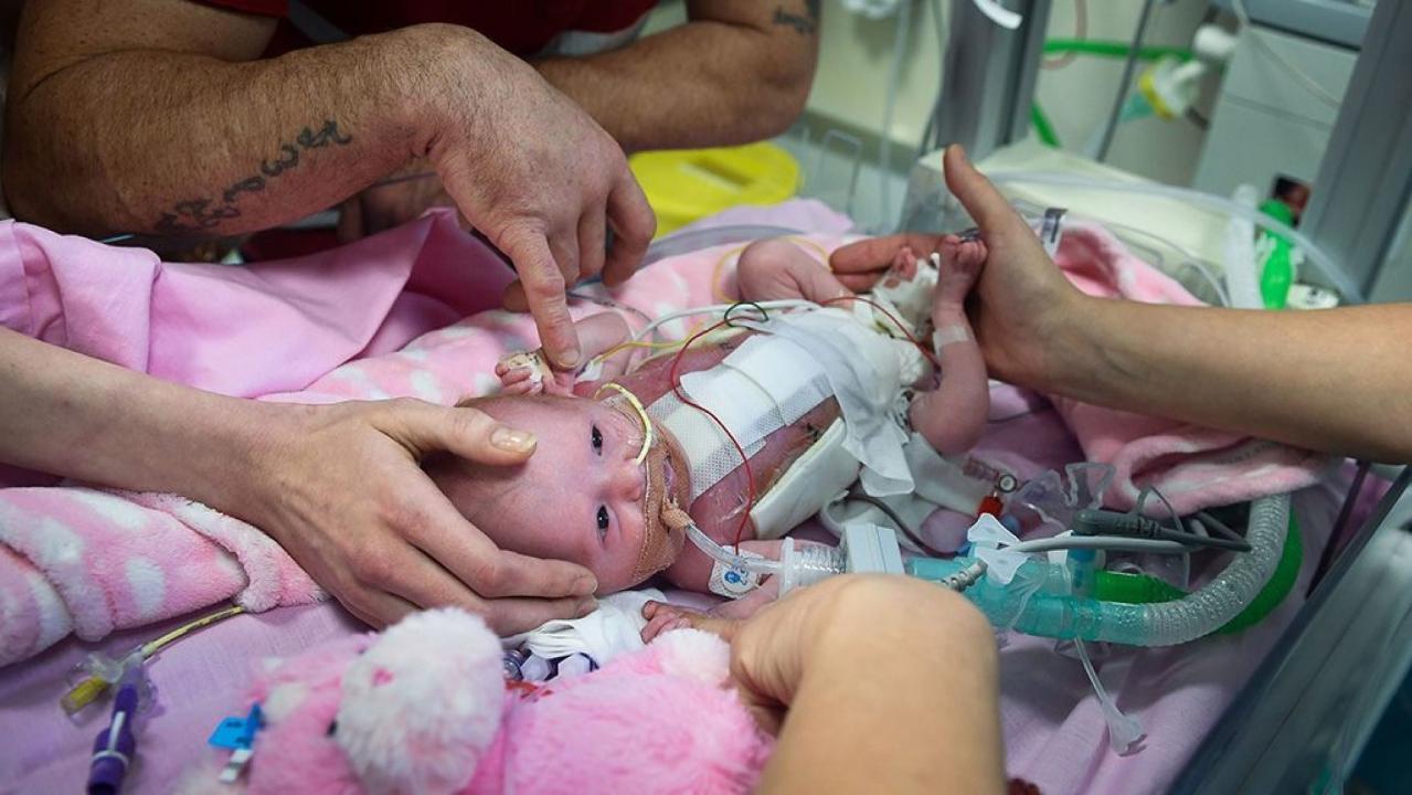 """Bé gái mắc hội chứng """"tim ngoài lồng ngực"""" chỉ có 10% sống sót, nhưng bố mẹ em quyết định làm việc này và điều kì diệu xảy ra - Ảnh 3."""