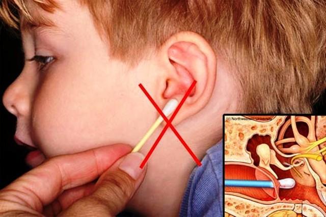 Đây là lý do vì sao trẻ đi bơi thường mắc viêm tai giữa: Cha mẹ cẩn trọng để chặn đứng nguy cơ mắc bệnh cho con - Ảnh 5.