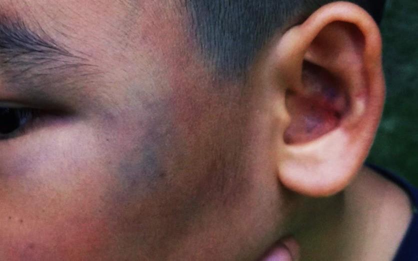 Xôn xao hình ảnh 1 bé trai bị hành hung dã man đến bầm tím mặt tại chung cư Sài Gòn