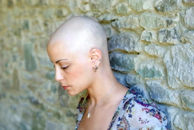 """Được chuẩn đoán ung thư nên phải hóa trị rụng hết tóc, còn ốm yếu không đi làm được, người phụ nữ rụng rời chân tay khi nghe tin """"bác sĩ nhầm"""" - Ảnh 2."""