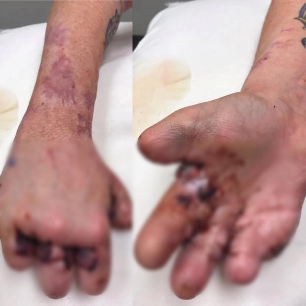 Tôi cụt hết ngón chân, vài ngón tay sau biến chứng kinh khủng của bệnh mà hầu như ai cũng từng bị nhưng lại rất coi thường - Ảnh 2.