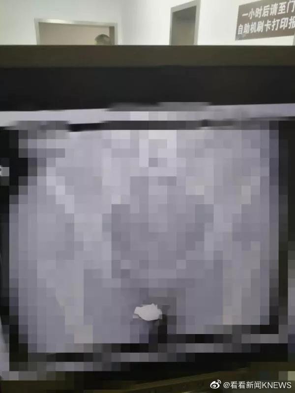 Bị tố ăn cắp đồng hồ hơn 200 triệu, nữ giúp việc quyết chối bị đưa đi chụp X-quang phát hiện món đồ được giấu ở nơi không ai nghĩ đến - Ảnh 2.